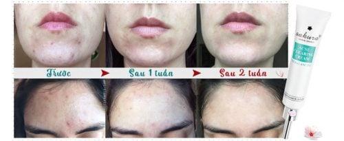 Kem trị mụn Sakura Acne Clearing Cream 2