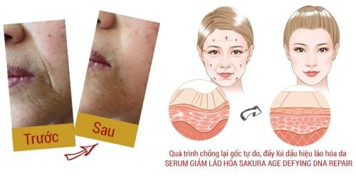 Serum chống lão hóa Sakura Age Defying DNA Repair 2