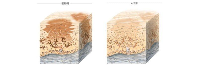 Viên uống Sakura HCL dưỡng trắng trị nám hiệu quả từ sâu trong tế bào da