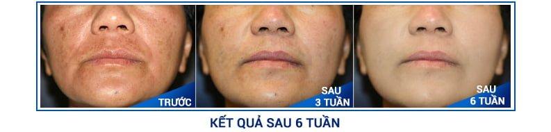 Kết quả sau 6 tuần điều trị bằng viên uống trị nám dưỡng trắng da Sakura HCL EX