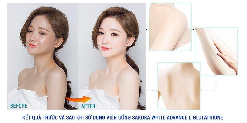 Viên uống làm trắng da Sakura White Advance L-Glutathione Complex 1600mg Xem chi tiết tại: https://sakuranhat.com/vien-uong-lam-trang-da-sakura-white-advance-l-glutathione-complex-1600mg.html