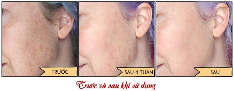 Trước và sau khi sử dụng bộ kem trị nám trắng da Sakura