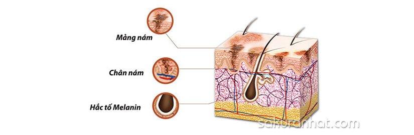 2. Tại sao trị nám da mặt cần phải tuân thủ theo liệu trình?