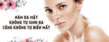 Nám da mặt không tự sinh ra cũng không tự biến mất