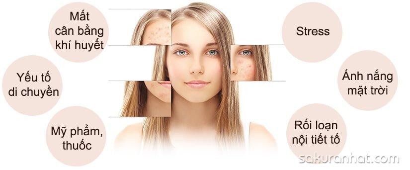Nám da mặt không tự sinh ra cũng không tự biến mất 1